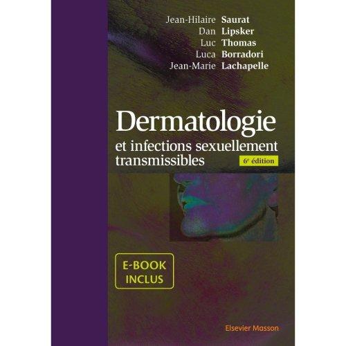 Dermatologie: Et Infections Sexuellement Transmissibles